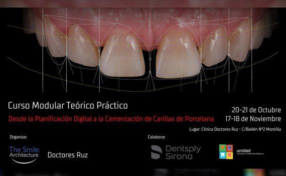 Curso Estética Dental Desde la Planificación Digital a la Cementación de Carillas de Porcelana – Montilla