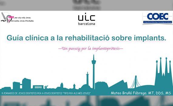 Guía Clínica a la Rehabilitación sobre Implantes – Barcelona