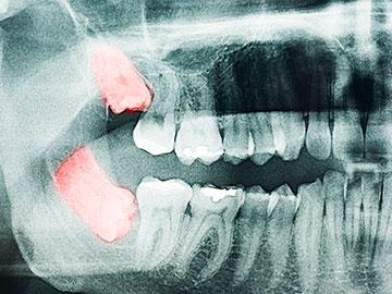 Cirugía oral clínica dental Castellón