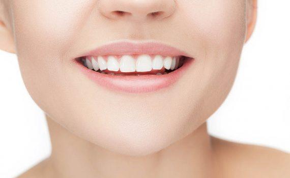 Prepara el tratamiento de alargamiento de coronas en tu dentista Castellón de confianza