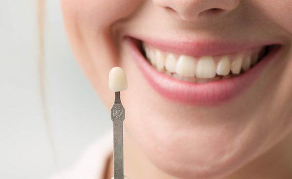 Pon solución a tus dientes amarillos