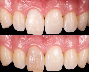 Blanqueamiento diente no vital caso 1