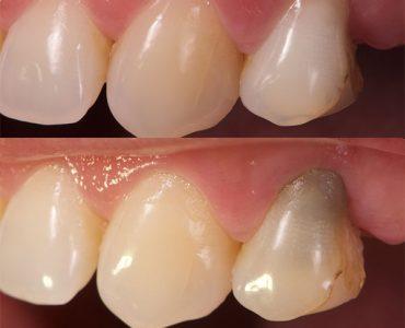 Blanqueamiento diente no vital caso 2