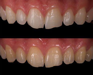 Blanqueameinto con Laser diente vital