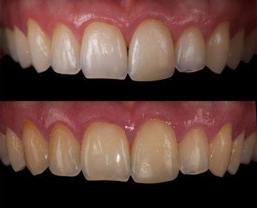 blanqueamiento diente vital caso 2