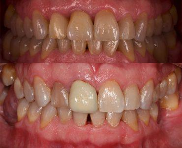Implante dental unitario en central y molares