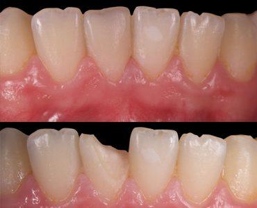 Reconstrucción de composite estético en diente fracturado