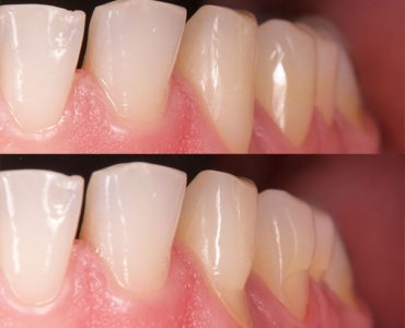 Restauración de composite en dientes con abfracción