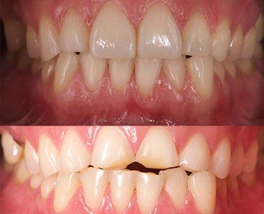 Restauración de composite estético en paciente con erosión dental