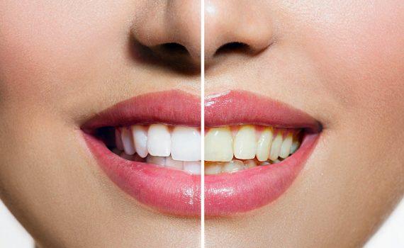 Blanqueamiento dental Castellón