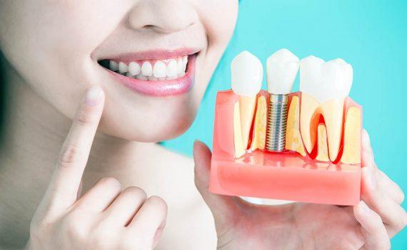 Evita la periimplantitis tras los implantes dentales