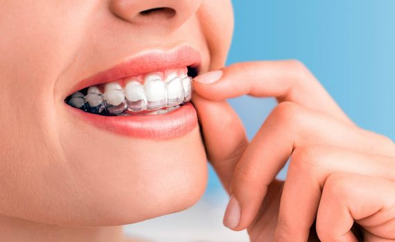 Tratamiento de ortodoncia Invisalign, más ventajas y eficacia