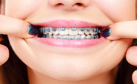 El mejor tratamiento para corregir tus dientes torcidos
