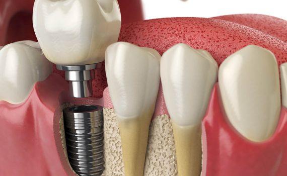 Reemplaza los dientes perdidos con implantes dentales