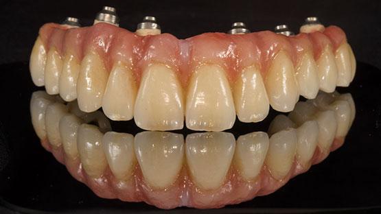 Periodoncia dental dentista Castellón