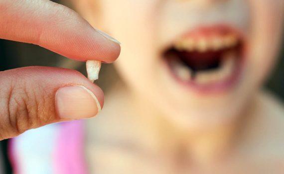 ¡Me he roto un diente! ¿Qué debo hacer?
