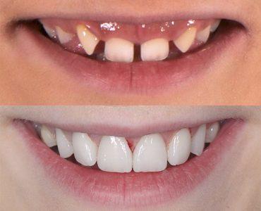 Carillas dentales tras ortodoncia y cirugía