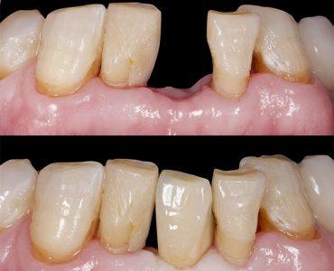 Corona sobre implante dental