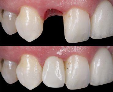 Implante sobre corona sobre implante dental